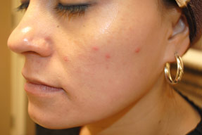 acne treatment before and after la nouvelle, oxnard, ventura