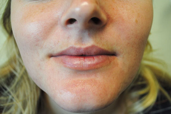 1 in Laser Acne Treatments - Ventura County
