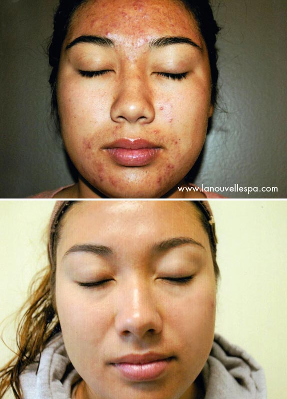 1 in laser acne treatments ventura county for Acne salon treatments