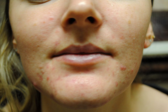 acne treatments before by la nouvelle medical spa oxnard
