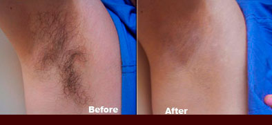laser Hair Removal - Armpit