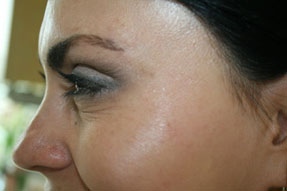 botox, dyspot, xeomin injections before after photos for wrinkle removal ventura oxnard dr hanna