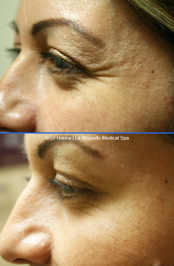 botox, dyspot, xeomin injections before after photos ventura oxnard
