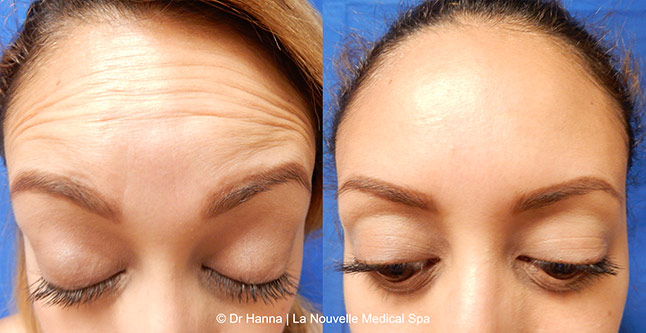 botox xeomin injections before after photos by dr. Hanna, La Nouvelle Medical Spa, Oxnard, Ventura county
