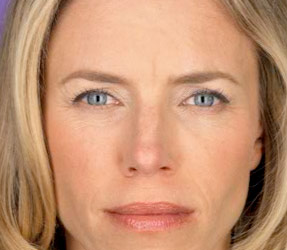 Botox injections for wrinkle removal - after photo, dr hanna, la nouvelle oxnard, ventura county