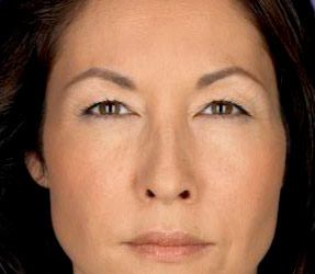 Botox Frown lines - after