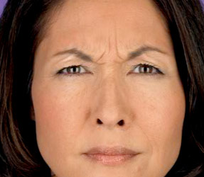 Botox Frown lines - before