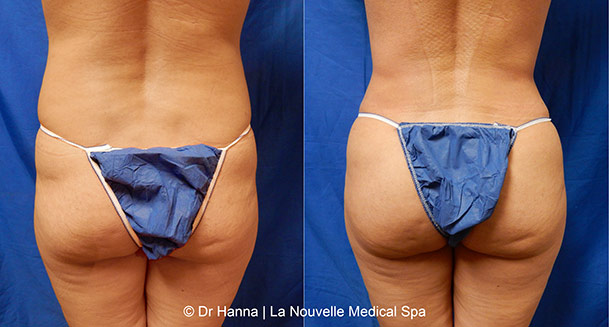 brazilian butt lift before and after by dr. hanna la nouvelle medical spa oxnard