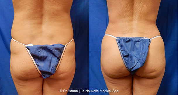 brazilian butt lift before and after photos by dr hanna at la nouvelle medical spa oxnard ventura
