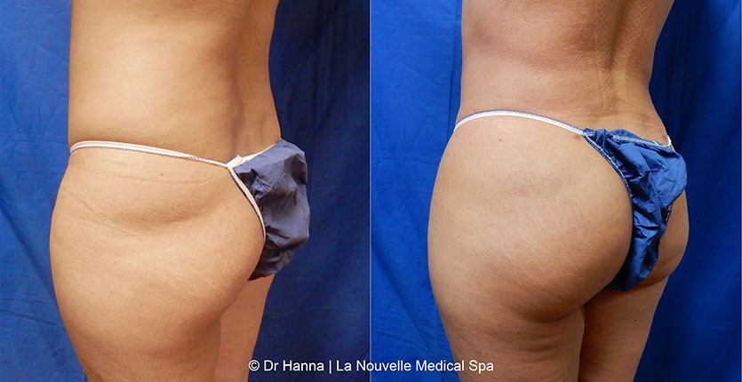brazilian butt lift before after photos by dr. Hanna, La Nouvelle Medical Spa, Oxnard, Ventura county