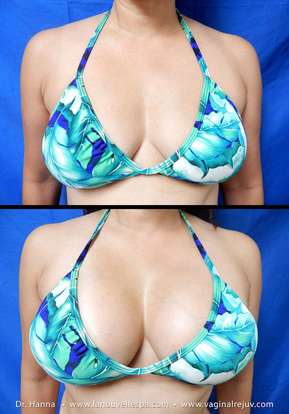 breast augmentation with silicone implants by doctor antoine hanna ventura, oxnard, los angeles