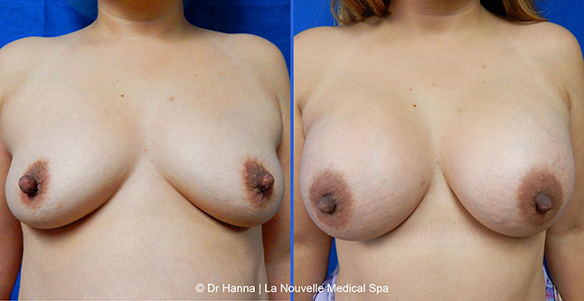 breast augmentation with silicone implants before after photos by dr. Hanna, La Nouvelle Medical Spa, Oxnard, Ventura county