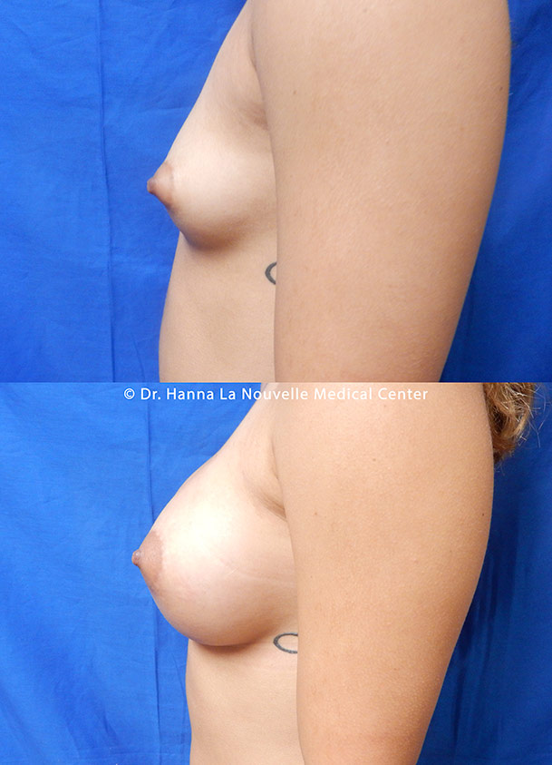 breast augmentation with silicone implants before after by dr antoine hanna ventura