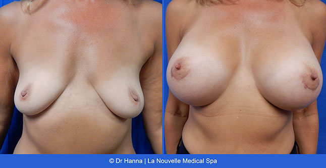 beast lift and breast augmentation with silicone implants before after photos by dr. Hanna, La Nouvelle Medical Spa, Oxnard, Ventura county