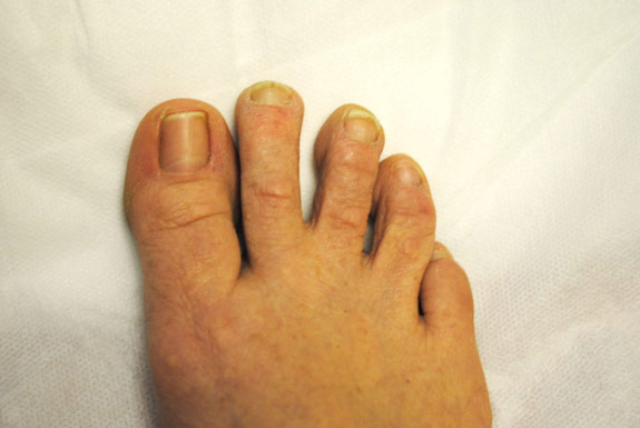 fungus toe nail treatments by laser genesis after photo