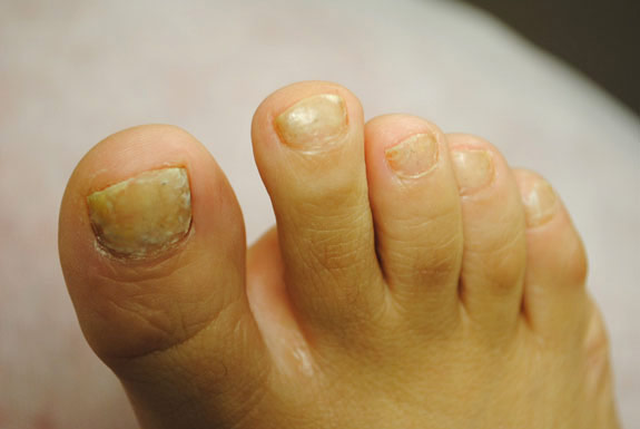 fungus toe nail treatments by laser genesis before photo