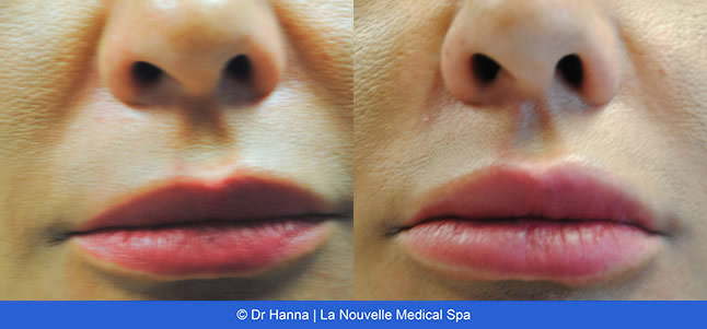 Juvederm Lip Enhancement Before and After Photos | Oxnard