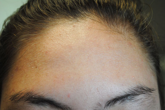 laser genesis and la nouvelle acne line on female forehead by  la nouvelle spa oxnard, after photo