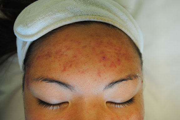 laser genesis and la nouvelle acne line on female forehead by  la nouvelle spa oxnard, before photo