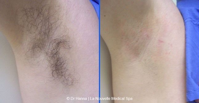 laser hair removal before after photos, La Nouvelle Medical Spa, Oxnard, Ventura county