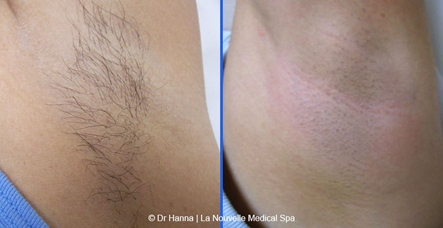 Laser Hair Removal Before And After Photos Oxnard Ventura
