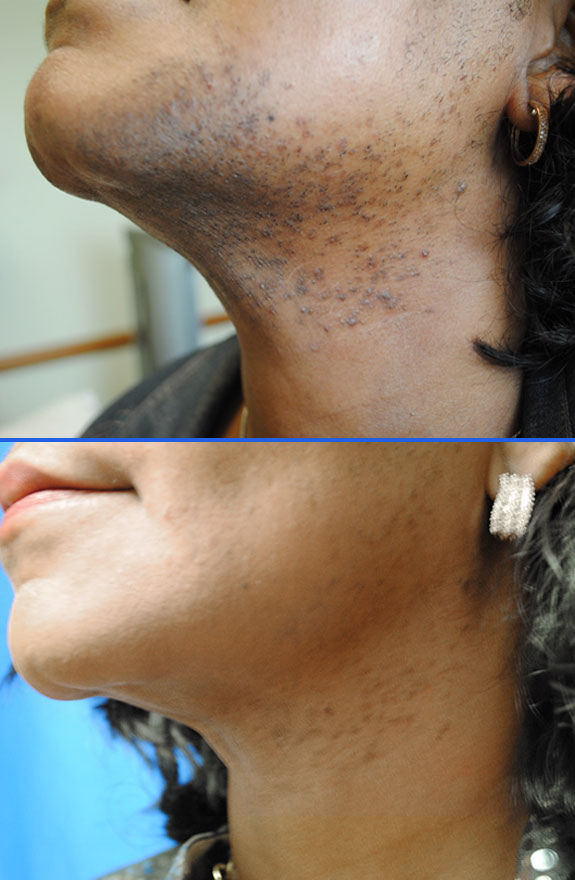 laser hair removal chin before after photos, La Nouvelle Medical Spa, Oxnard, Ventura county