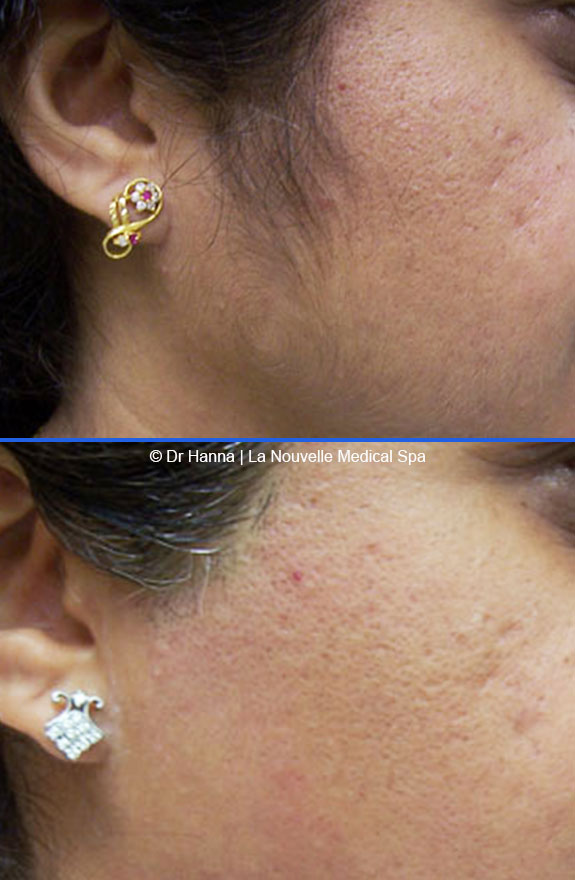 laser hair removal on cheek before after photos, La Nouvelle Medical Spa, Oxnard, Ventura county