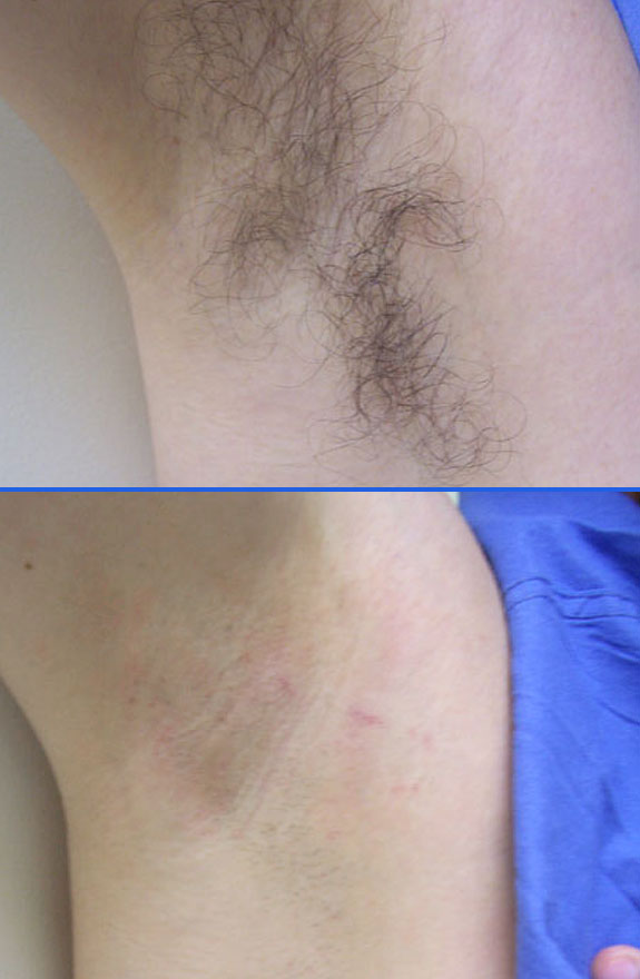 laser hair removal armpit before after photos, La Nouvelle Medical Spa, Oxnard, Ventura county