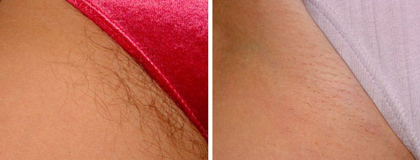 laser hair removal before and after oxnard ventura county