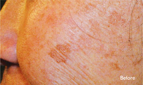 Laser IPL - sun spots before