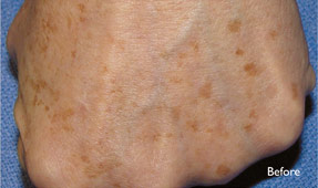 Laser IPL - age spots before