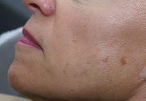 IPL laser treatment - browns spots before