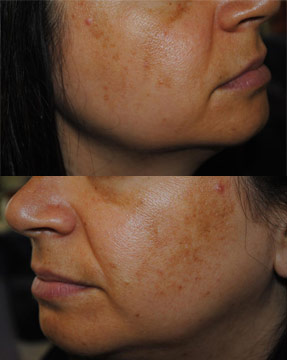 Laser IPL - before