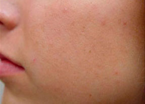 Laser Acne Treatment - acne scarsafter