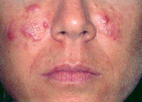Laser Acne Treatment - before