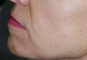 IPL laser treatment - brown spots after