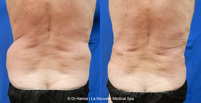 Before And After Photos Of Laser Liposuction Smartlipo