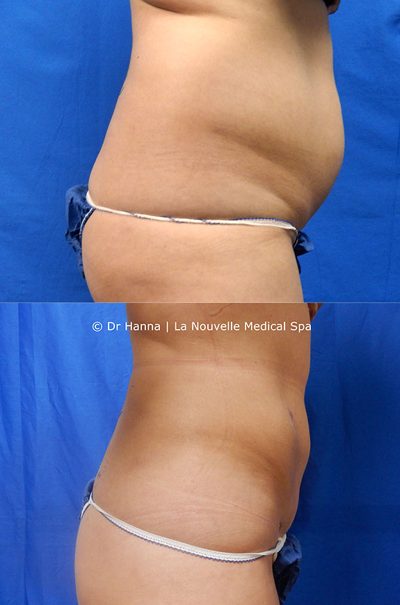 liposuction on back by dr hanna la nouvelle spa oxnard