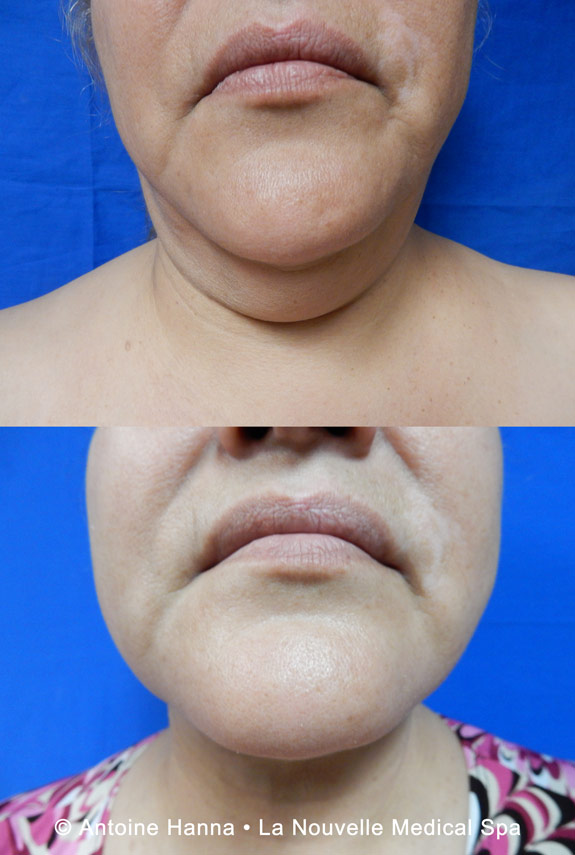 neck liposuction before after by dr hanna la nouvelle spa oxnard