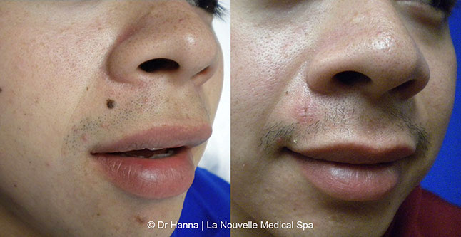 Mole Removal Before and After Photos by Dr  Hanna | Ventura