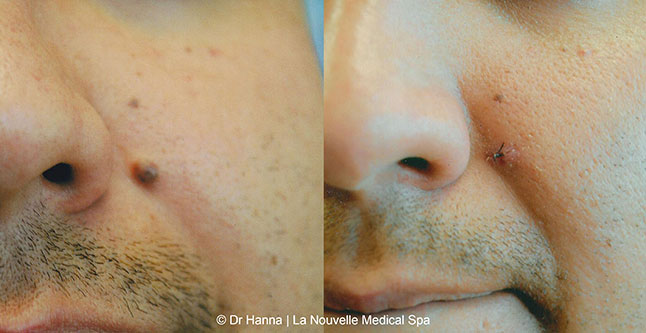 leison and mole removal before after photos by dr. Hanna, La Nouvelle Medical Spa, Oxnard, Ventura county