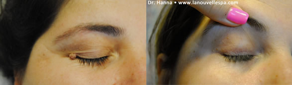mole leispn removal by dr hanna la nouvelle medical spa oxnard ventura