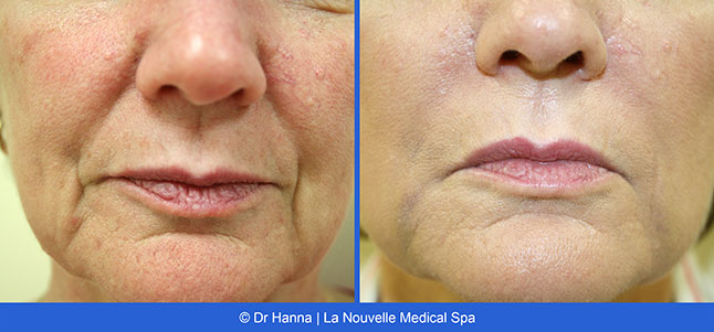 1 in Juvederm Injections, Wrinkles Fillers at La Nouvelle