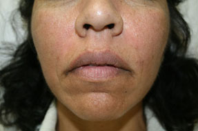 fillers, radiesse, juvederm, restylane before and after