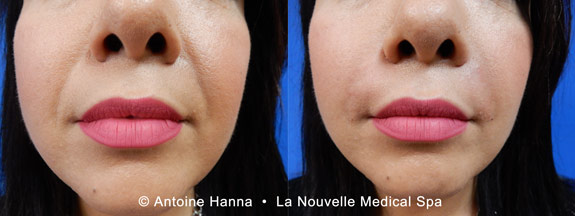 injectables by dr. hanna la nouvelle medical spa oxnard