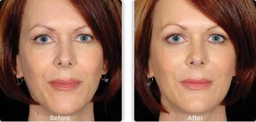 Restylane Nasolabial folds Before and after