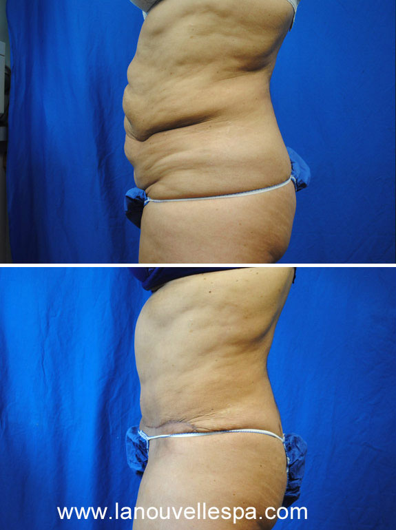 tummy tuck by dr hanna la nouvelle spa oxnard