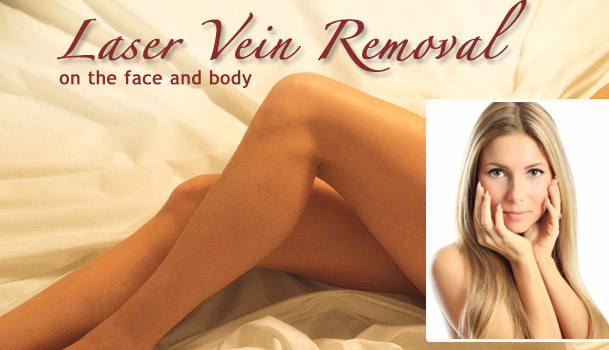 Laser Vein Removal spider veins