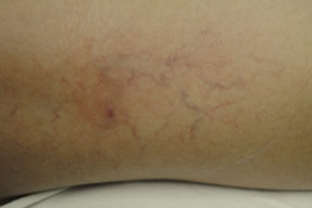 asclera injections for spider and varicose vein removal in oxnard, ventura county