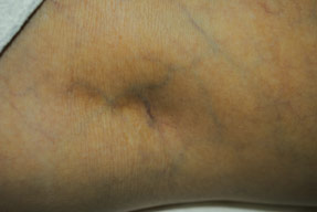 vein Removal with asclera injections before photo, la nouvelle, oxnard